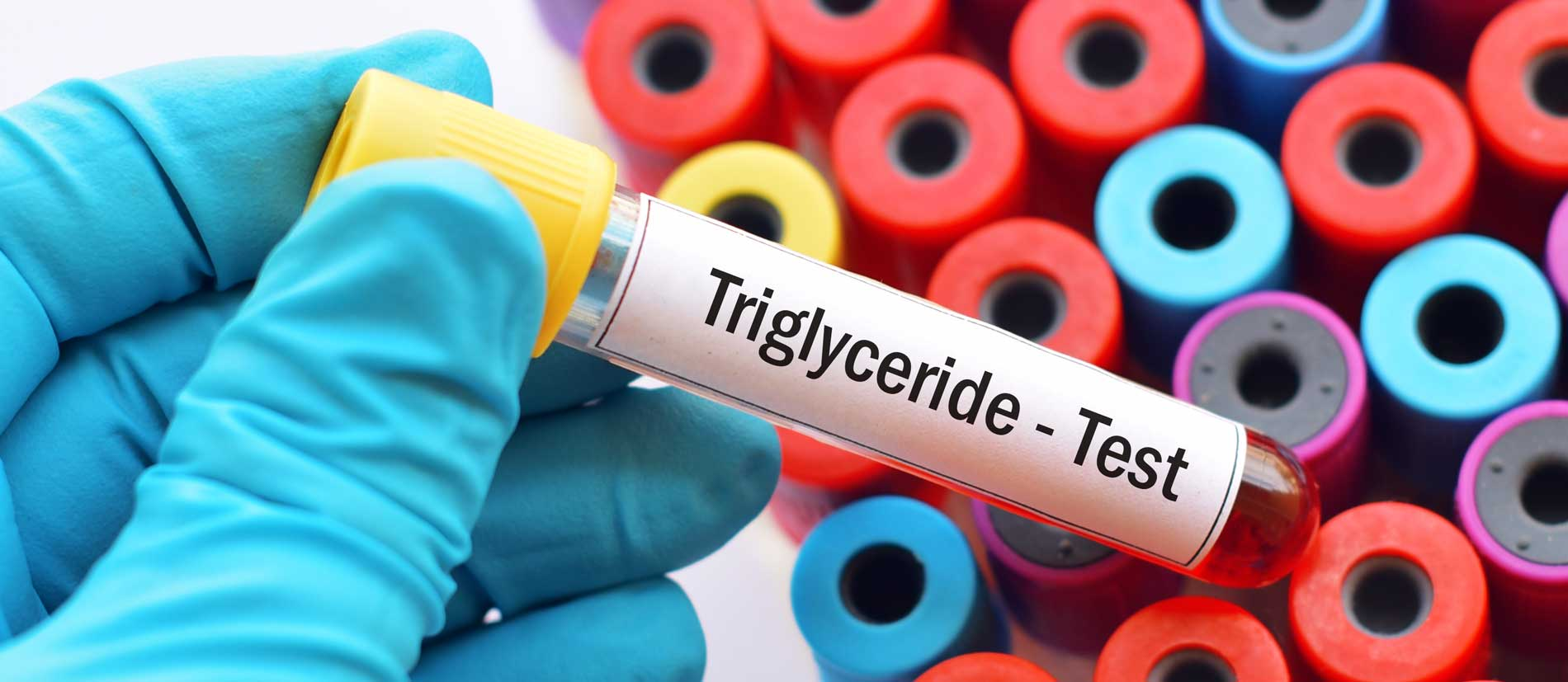 Quelle valeur de triglycérides ne doit pas être dépassée?